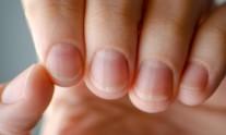 νύχια