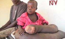 10χρονο παιδάκι κινδυνεύει να πεθάνει – ΒΙΝΤΕΟ ΣΟΚ