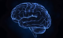 Human brain left x-ray view