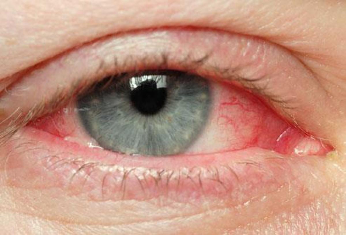 7916f71c37cb Γιατί κοκκινίζουν τα μάτια μου