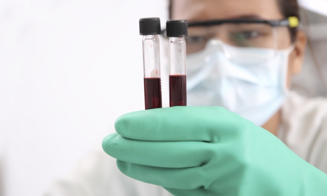 Closeup of a blurred female scientist looking at blood  in test