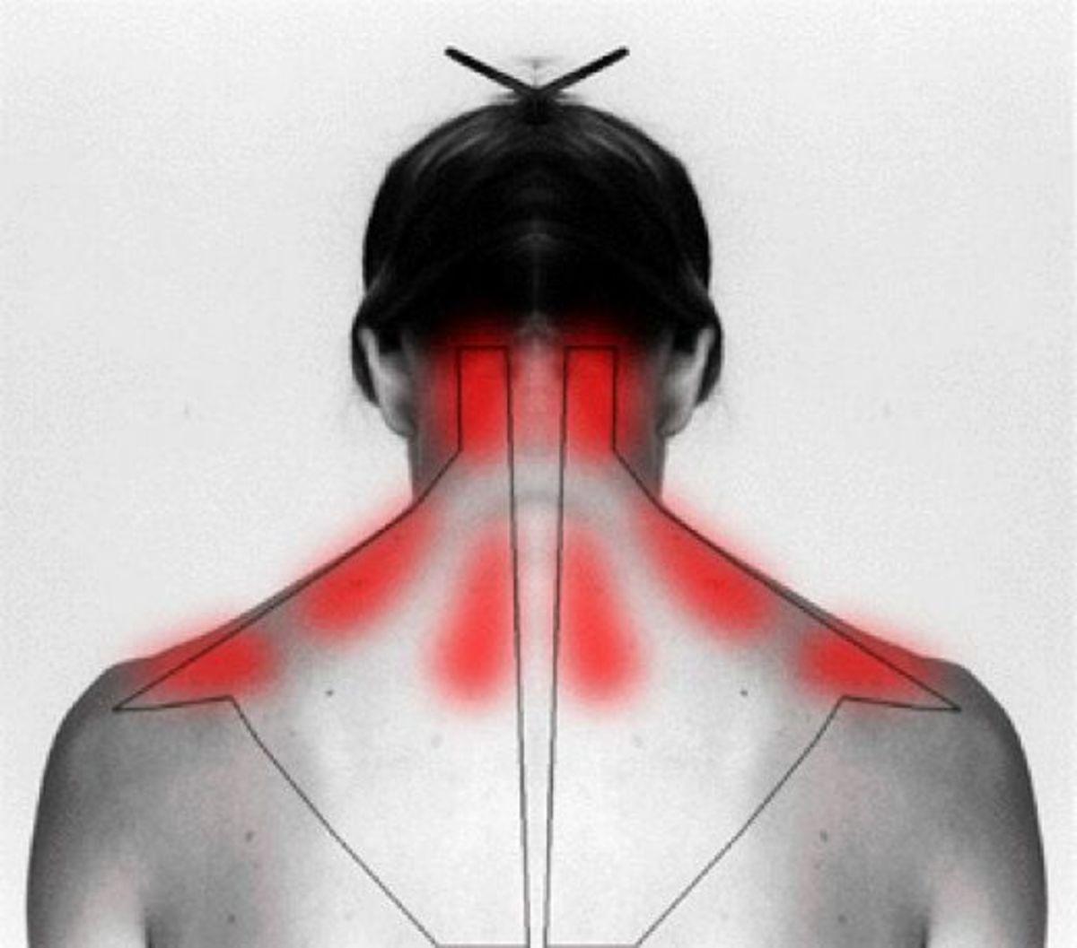 Πόνοι στον αυχένα και την ωμοπλάτη: Οι ασκήσεις που σώζουν..