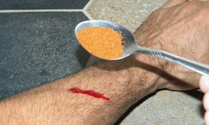 αιμορραγία