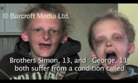 Αδέρφια βρικόλακες πάσχουν από βαμπιρισμό.Βίντεο