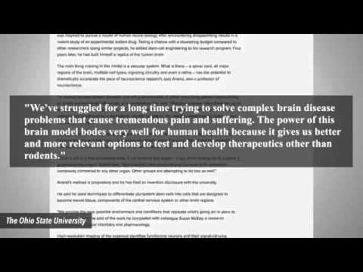 Δημιούργησαν τον πρώτο τεχνητό εγκέφαλο ανθρώπου σε εργαστήριο (ΒΙΝΤΕΟ)