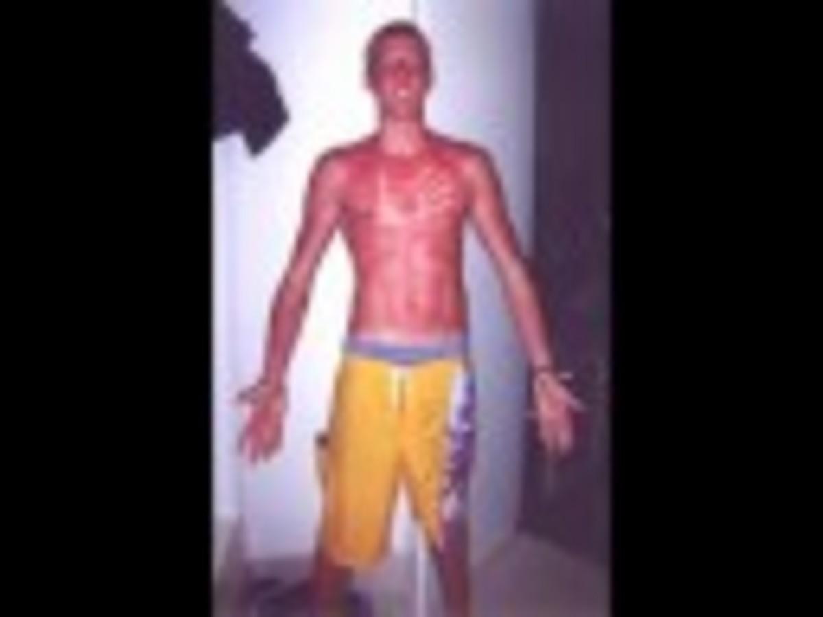 Δείτε τα χειρότερα εγκαύματα στην ηλιοθεραπεία -ΒΙΝΤΕΟ