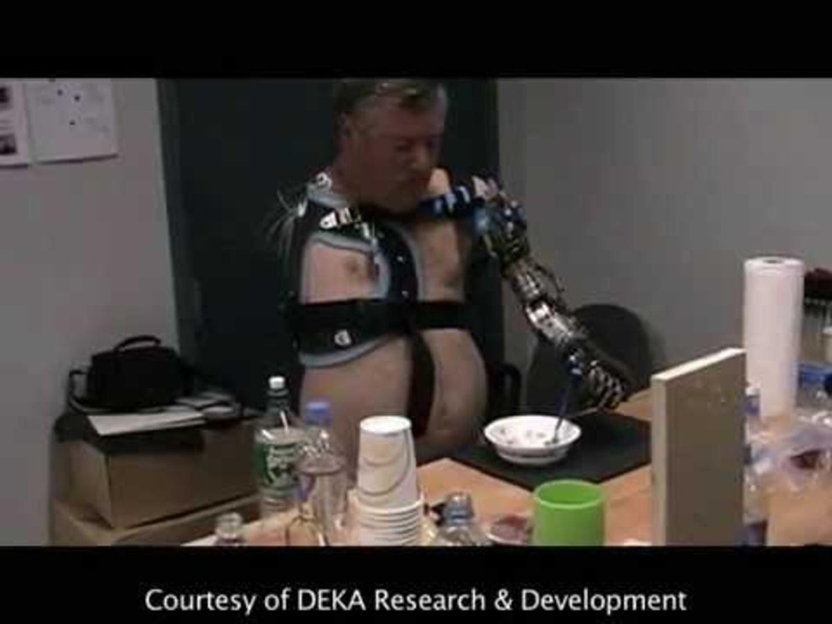 Δείτε το: Ρομποτικό χέρι προσφέρει αίσθηση αφής σε παράλυτο χρήστη (ΒΙΝΤΕΟ)