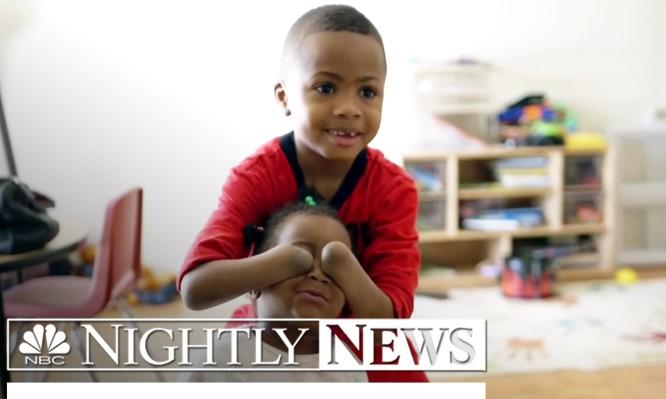 Γεγονός η πρώτη διπλή μεταμόσχευση χεριών σε 8χρονο στις ΗΠΑ (ΒΙΝΤΕΟ)