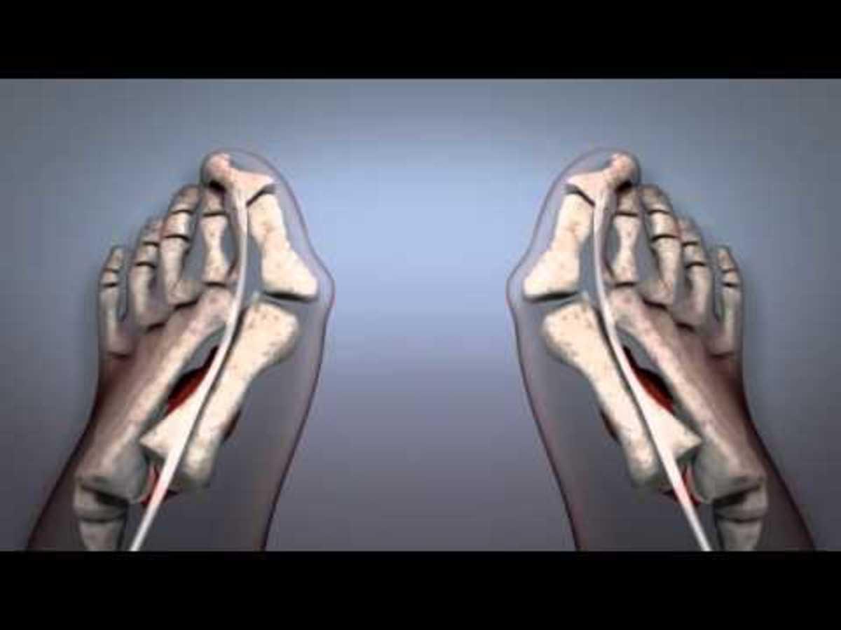 Κότσι στο μεγάλο δάχτυλο: Τι ακριβώς συμβαίνει και τι να κάνετε (ΒΙΝΤΕΟ)