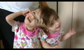 Σιαμαία κοριτσάκια με κοινό εγκέφαλο και κοινές σκέψεις. ΒΙΝΤΕΟ