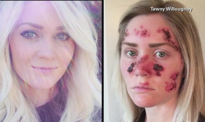 ΣΟΚ: Η φωτό που σάρωσε το διαδίκτυο από κοπέλα με καρκίνο του δέρματος (ΒΙΝΤΕΟ)