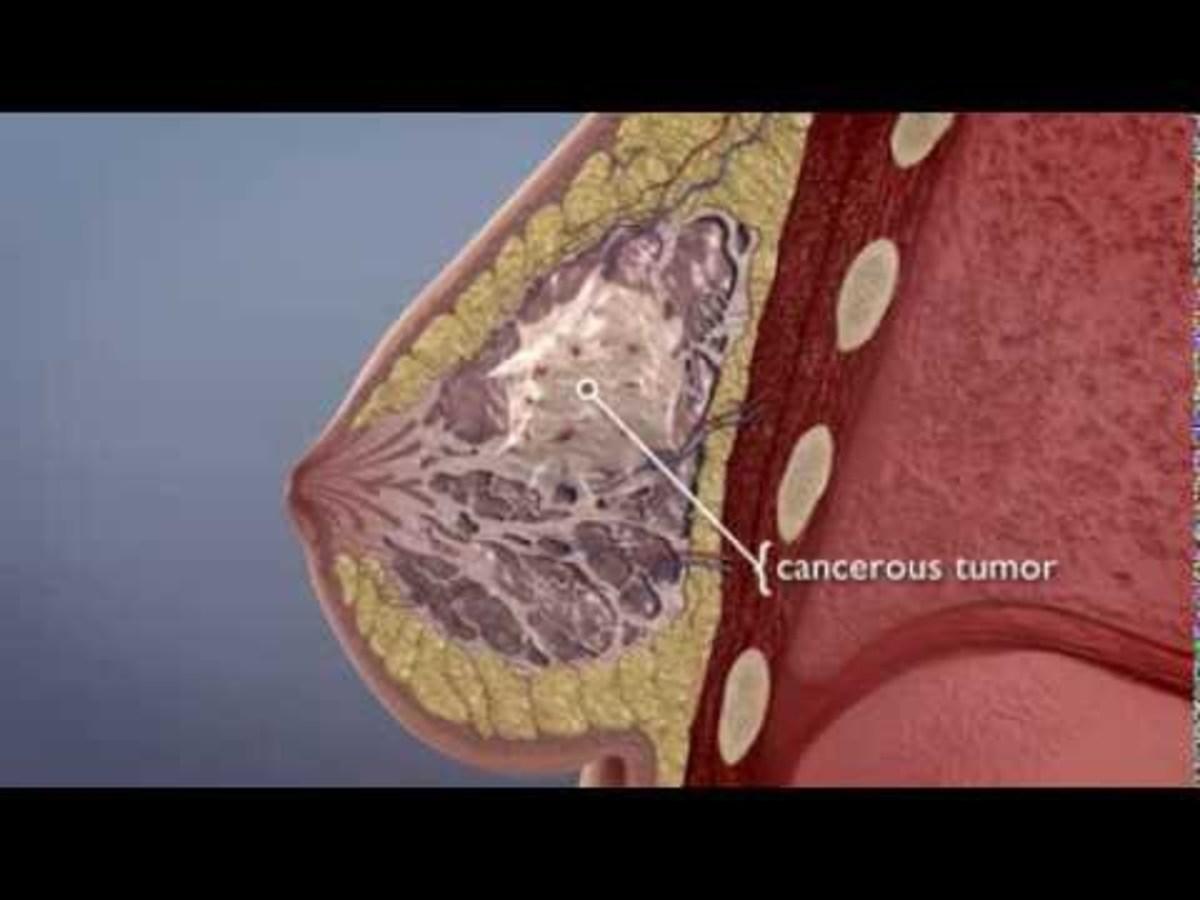 Τα φυσικά γνωρίσματα του καρκίνου του στήθους (ΒΙΝΤΕΟ)