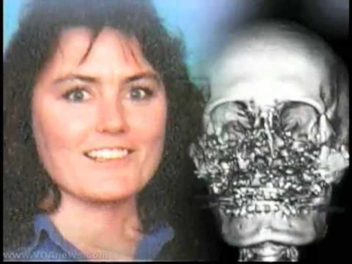 Την πυροβόλησαν στο πρόσωπο και οι γιατροί της μεταμόσχευσαν νέο- VIDEO