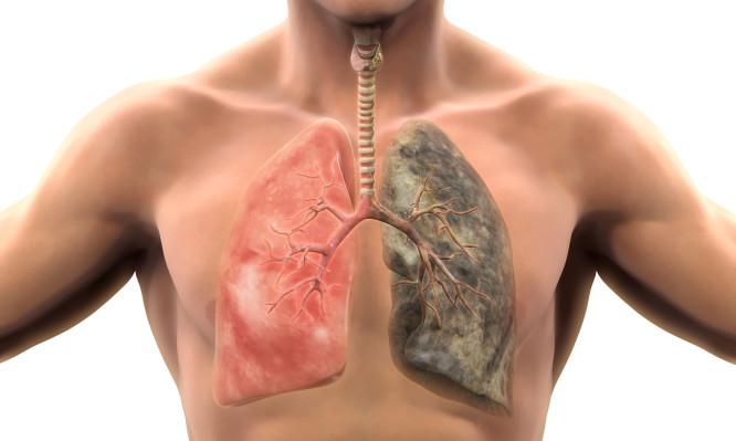 Σε πόσο καιρό θα καθαρίσουν οι πνεύμονες, αν κόψετε σήμερα το κάπνισμα;