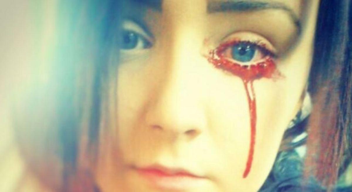 αίμα από τα μάτια