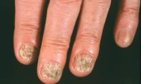 μύκητες στα νύχια
