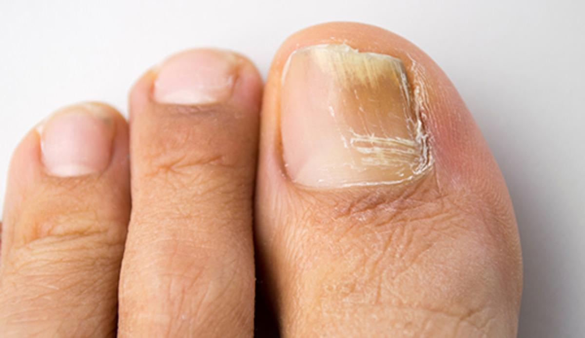 Αποτέλεσμα εικόνας για Μύκητες στα νύχια χεριών και ποδιών
