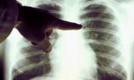 καρκινος πμευμονα