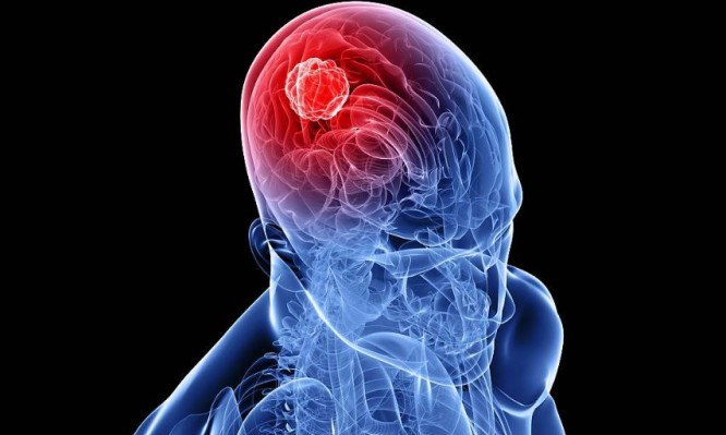 όγκος στο κεφάλι