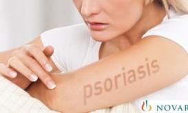 psoriasis-novartis