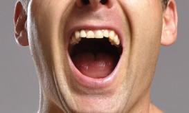 καρκίνος του στόματος
