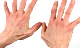 atiopiki-dermatitida