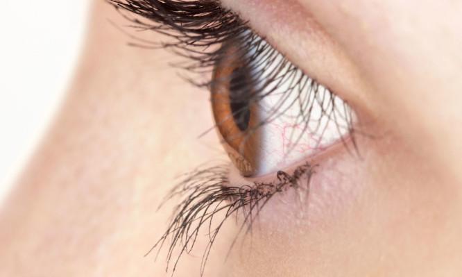 χαλάζιο στο μάτι
