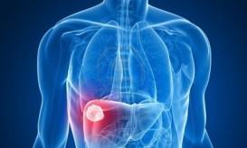 ηπατοκυτταρικό καρκίνωμα