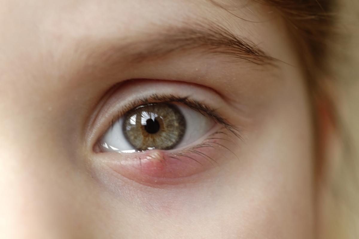 Αποτέλεσμα εικόνας για κριθαρακι στο ματι
