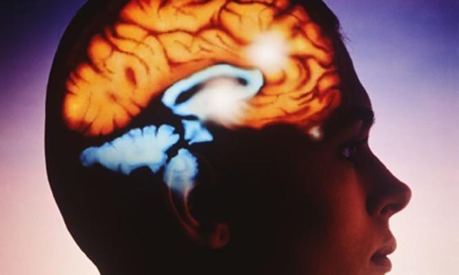 εγκεφαλικό