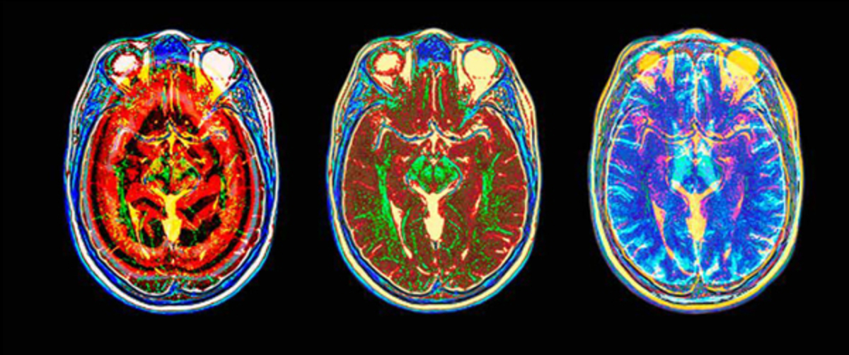 turning-brain-scans