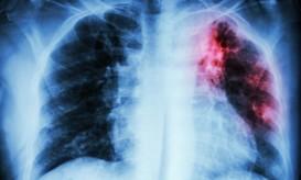 παγκόσμια ημέρα φυματίωσης