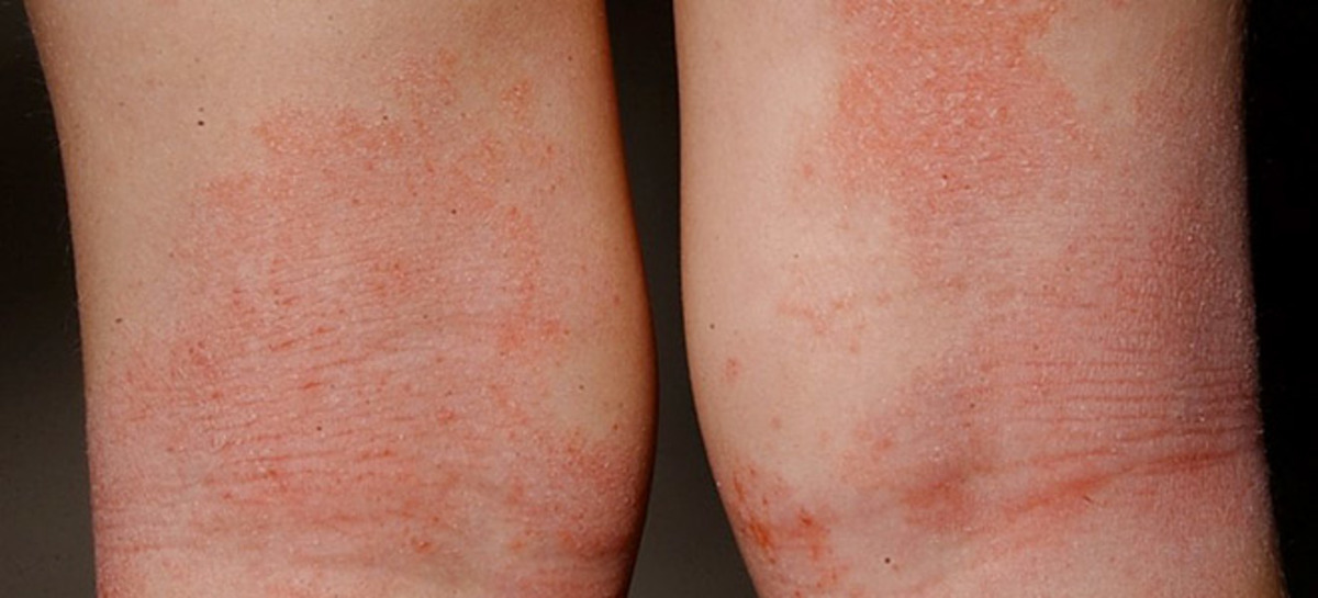 dermatitis-660