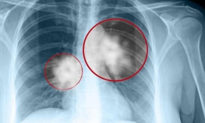 καρκινος πνευμονα