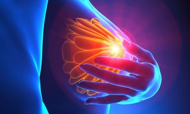 φλεγμονώδης καρκίνος του μαστού