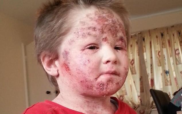 Τρομερό έκζεμα σε 5χρονο: Έγδερνε το δέρμα του επειδή εθίστηκε στα στεροειδή της αλοιφής [pics]