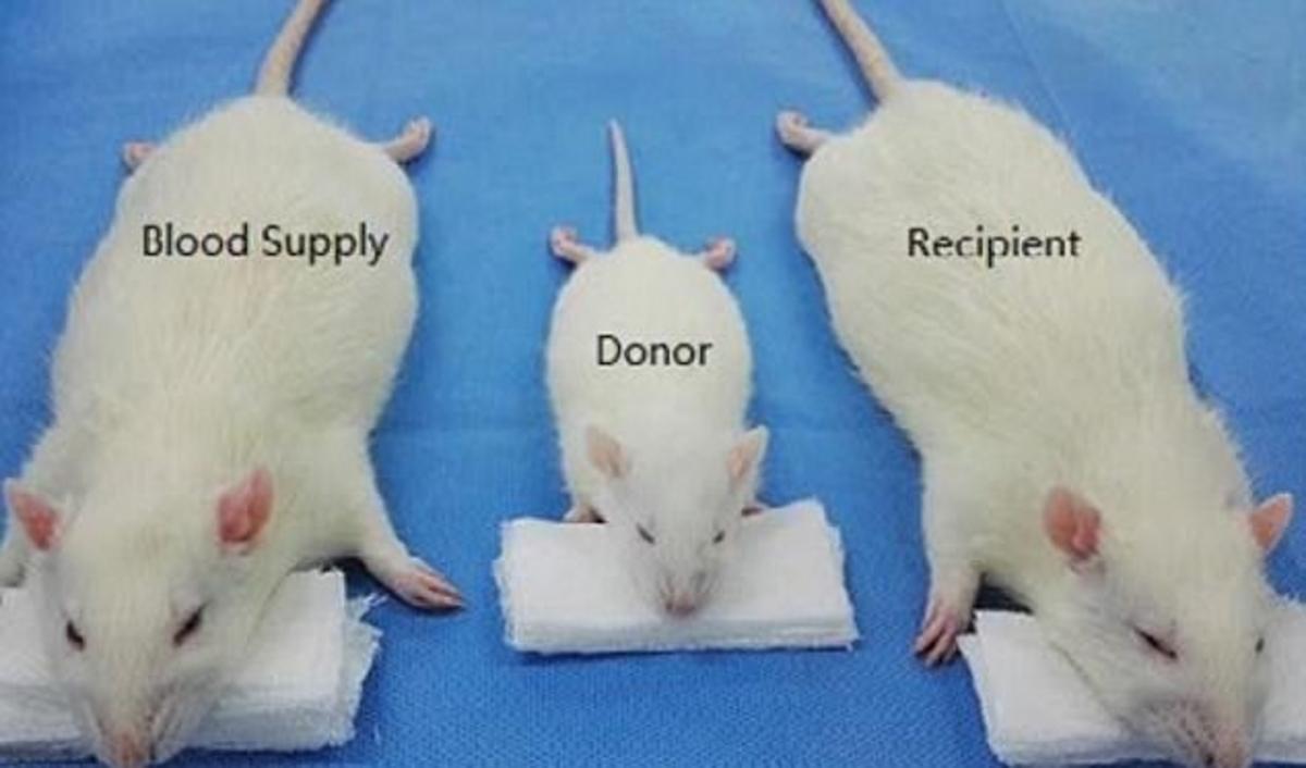 μεταμόσχευση κεφαλιού