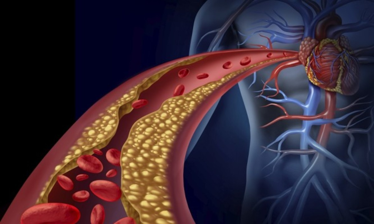 Clogged artery and atherosclerosis disease medical concept with a three dimensional human artery with blood cells that is blocked by plaque buildup of cholesterol as a symbol of arteriosclerotic vascular diseases.