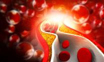 χοληστερόλη