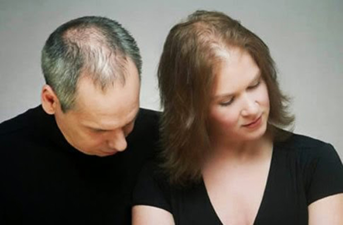 alopekia-androgenetiki