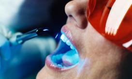 λευκάνσεις δοντιών
