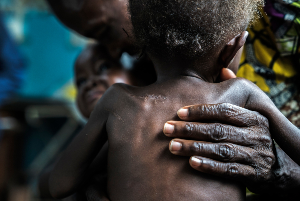 Malnourished 17-month-old twins brought to the Ditekemena health centre by their grandparents. They have been hiding in the bush for five months after armed militias attacked their village. Both of their parents were killed and the babies suffered knife wounds.