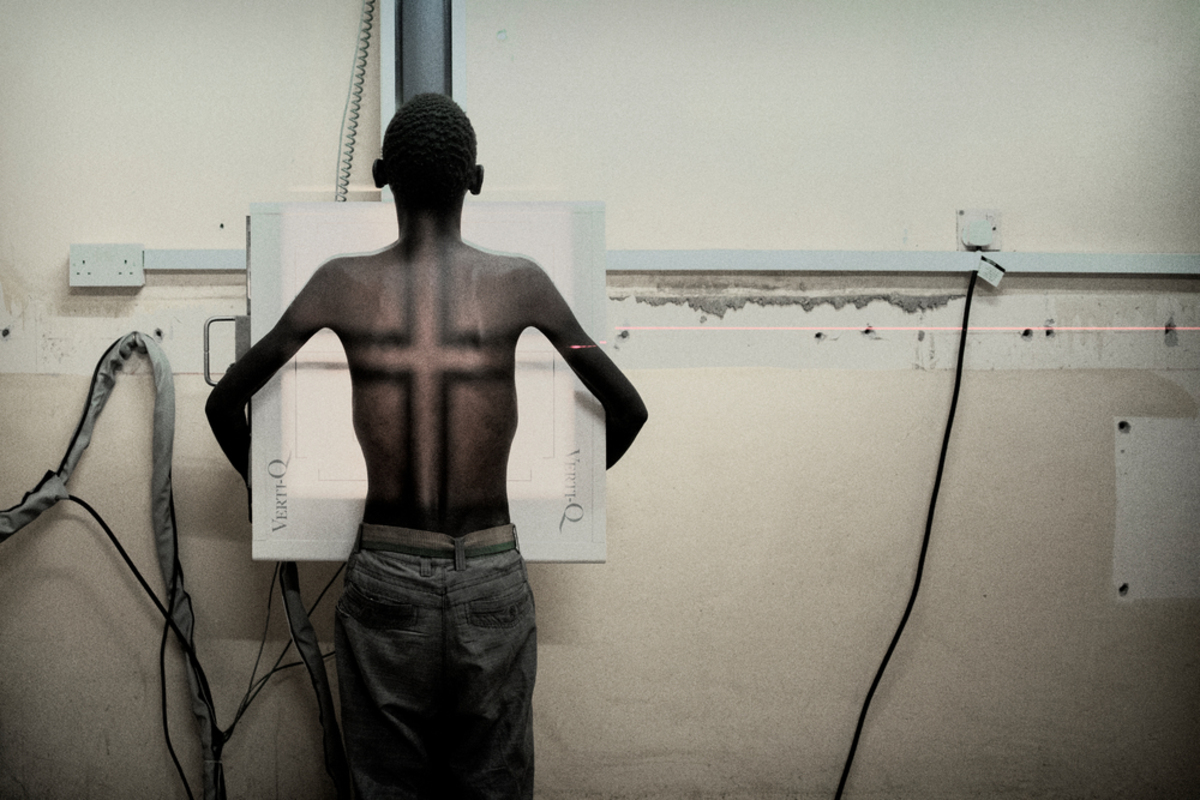 """Simbazako Thove, 19 years, who has HIV and TB is prepared for an X-ray in the X-ray room, Nsanje district hospital. Simbazako was forced to leave school due to financial problems. He lost both parents and now stays with his elder brother who is a small scale farmer. He has had two previous chest X-rays in Nsanje hospital, and has come again due to pains in his chest. Simbazako, who came alone, tested HIV positive last year and takes his antiretrovirals regularly. He had heard about HIV and because he was continually sick, decided to for an HIV test. Members of his local church sometimes support him, but he can go a day or so without food sometimes. His sister lives far away. Simbazako says """"I feel too much pain in my ribs. I take my ARVs without skipping even a day but my health is not improving as I had expected."""" Through the Nsanje HIV TB District Support programme, MSF is working with medical teams in Nsanje district hospital to improve diagnosis and clinical care of AIDS, including imaging, laboratory and pharmacy support."""