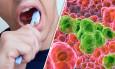 καρκίνος του οισοφάγου