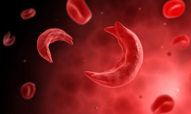 δρεπανοκυτταρική αναιμία