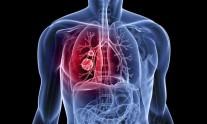 μικροκυτταρικός καρκίνος του πνεύμονα