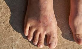 δερματίτιδα