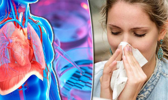 γρίπη