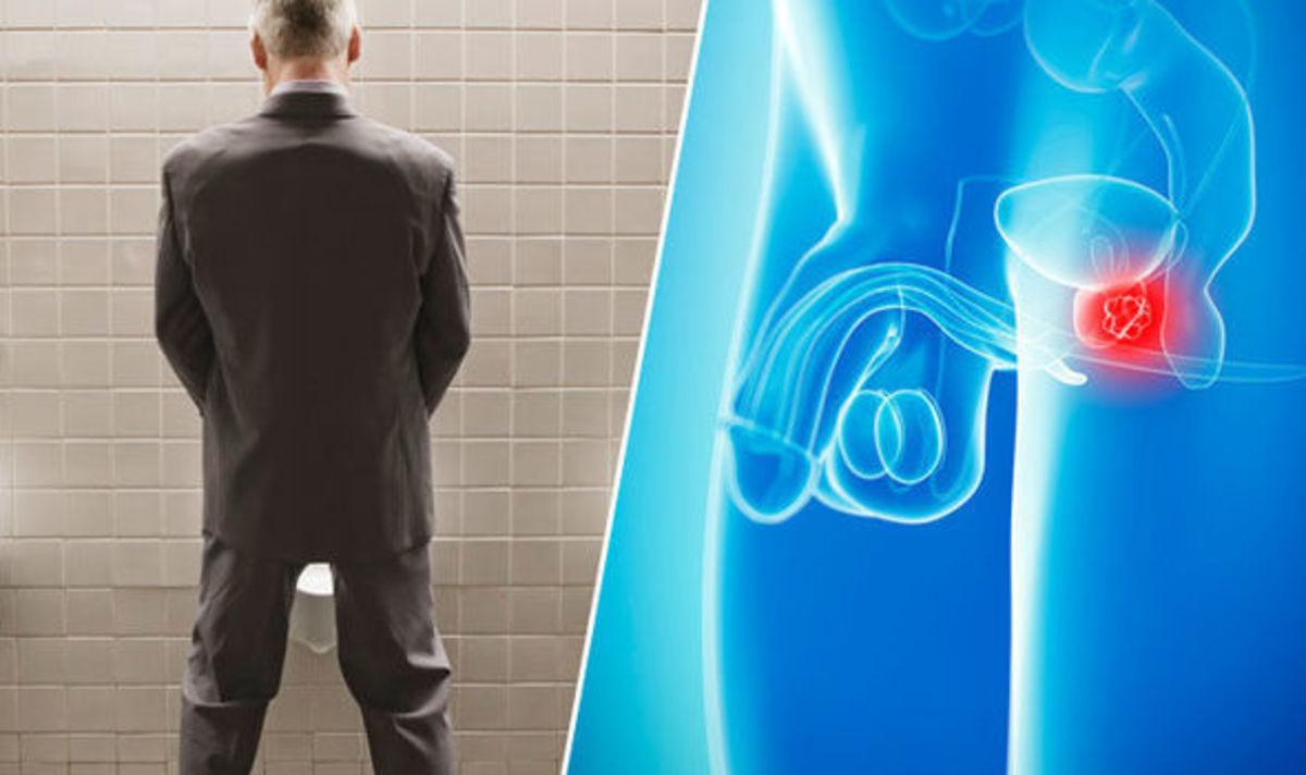 Hemo a gyertyákról a prosztatitis