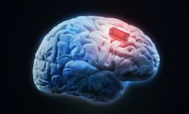 εγκεφαλικά εμφυτεύματα